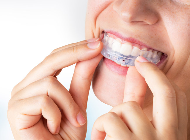 Woman wearing orthodontic silicone trainer. Invisible braces ali