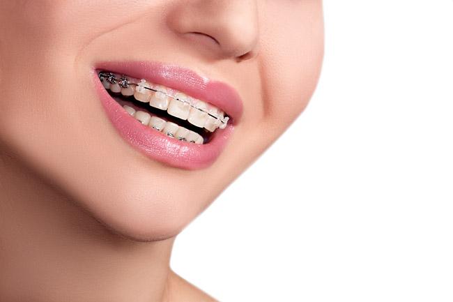 Braces Teeth Female Smile